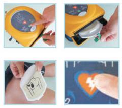 AED HeartSine samaritan 350 PAD